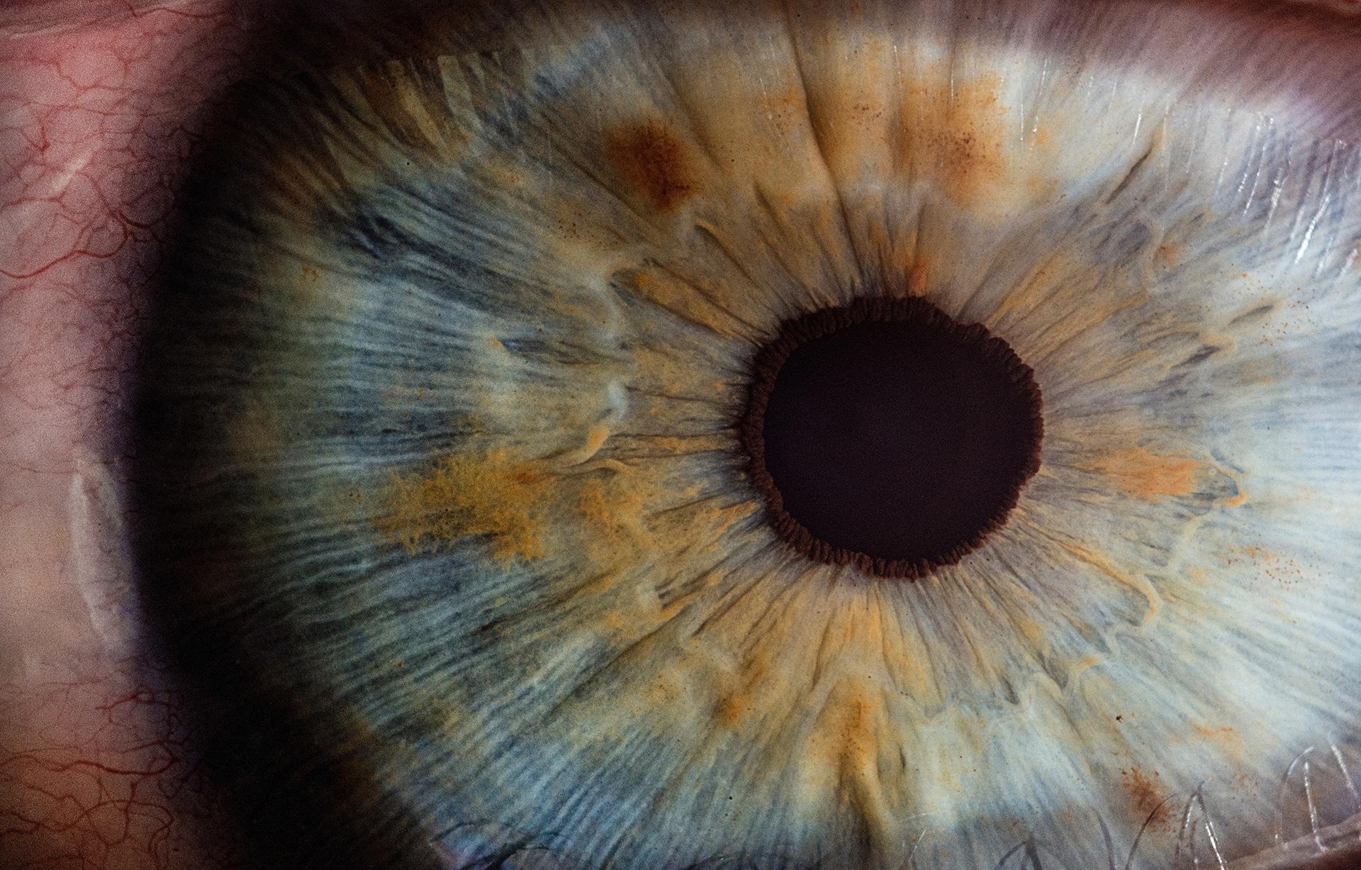 Was hilft bei Trockenem Auge?